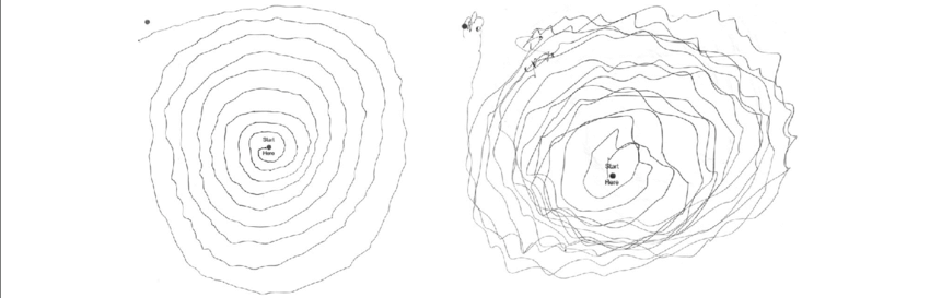 Drawing spirals essential tremor. The patient s archimedes