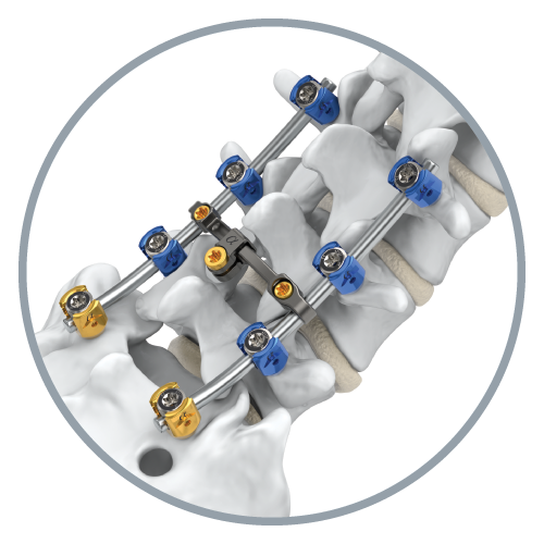 Alphatec spine png. And global orthopaedic technology