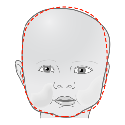 Dallas drawing helmet. Starband plagiocephaly treatment orthomerica