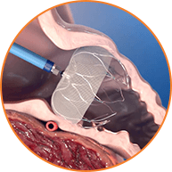 Atrial clip watchman. Implant for physicians device