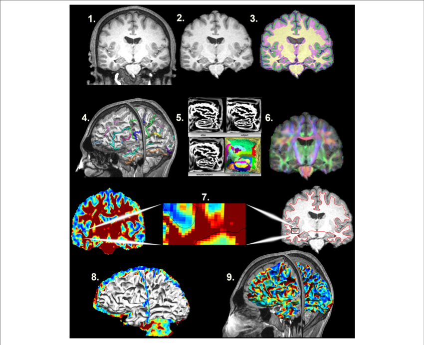 Autistic drawing brain map. Mapping the superficial white