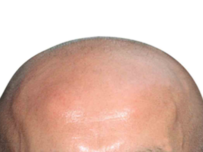 Bald head png. The play s thing