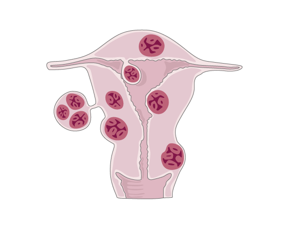 Biopsy clip breast cyst. Causes of fibroids in