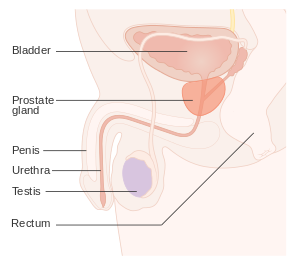 Biopsy clip painful. Prostate cancer wikipedia diagram
