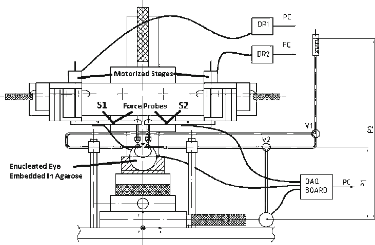 Board drawing mechanical. Palpation stage left force