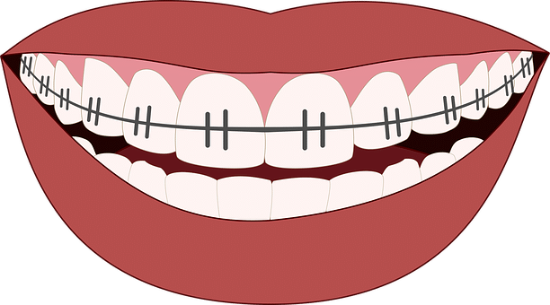 Dental clip brace. The pros and cons