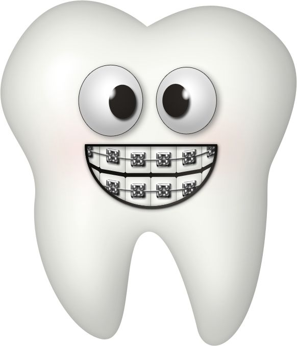 braces clipart dental brace