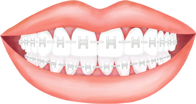 Braces clipart dental brace. Hornsby orthodontics colour planner