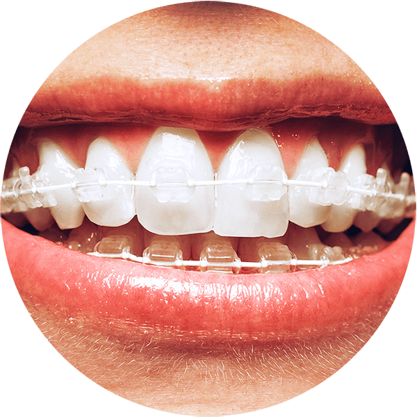 Teeth clip different style. How do braces work