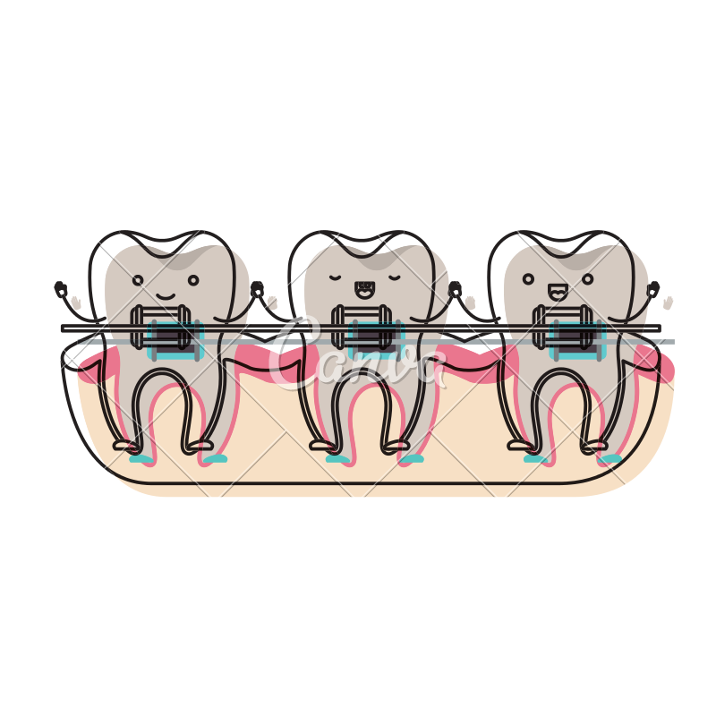 Braces clipart tooth cartoon. On gum and holding