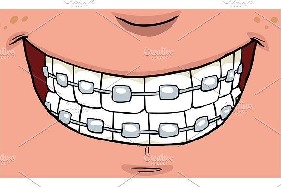 Braces clipart tooth cartoon. Smile with on teeth