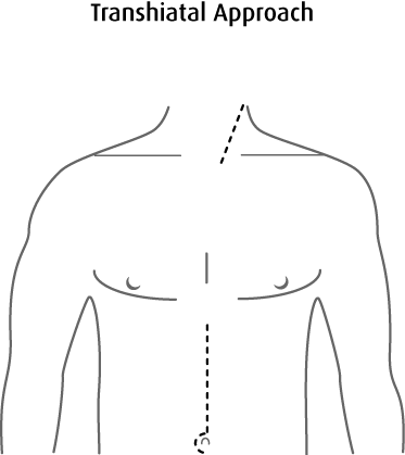 Surgeon drawing medicine. Surgery for esophageal cancer
