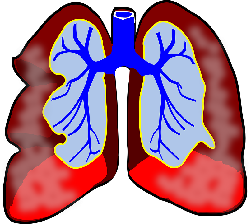 Cancer clipart respiratory problem. System at getdrawings com