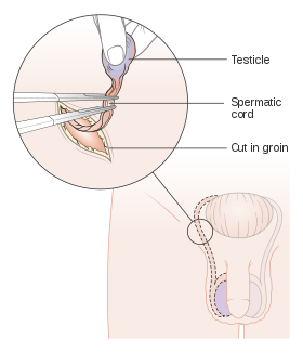 Drawing cutting depression. Orchiectomy wikipedia