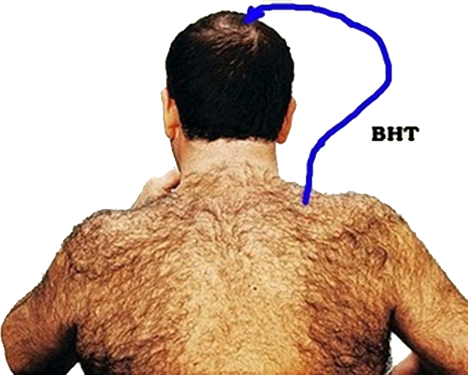 Chest hair png. Patel body transplant
