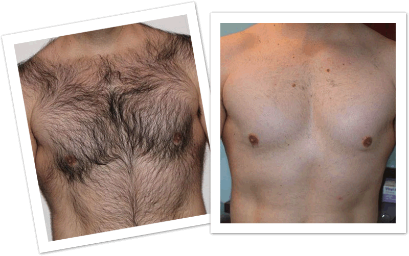 Chest hair png. Laser removal permanent www