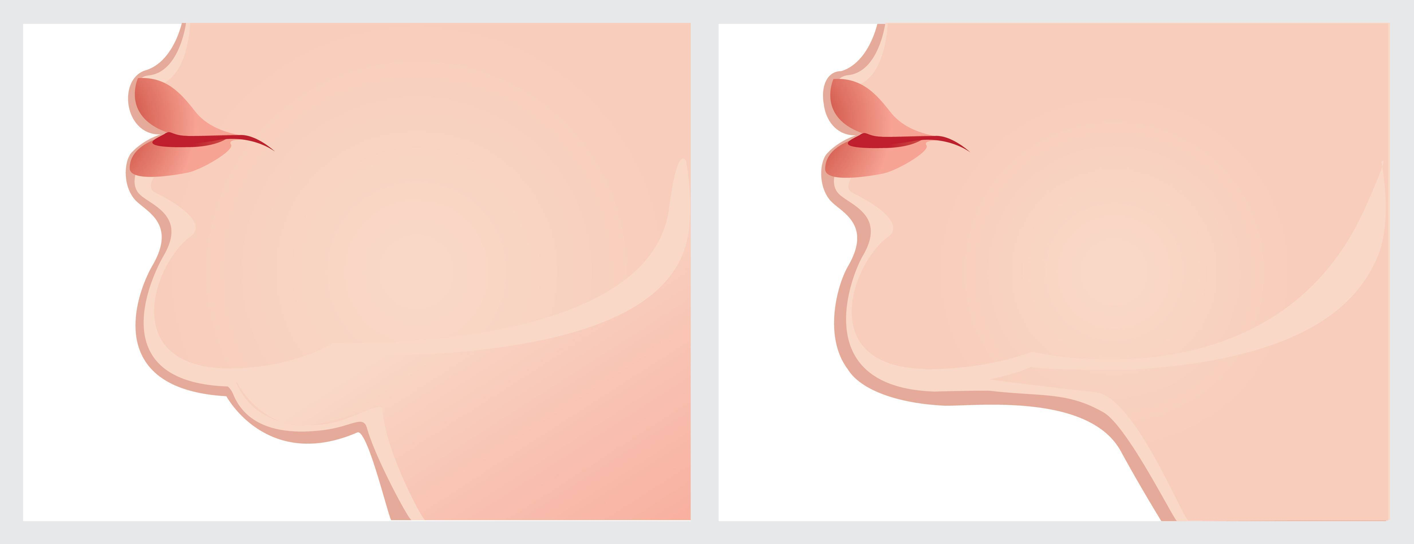 tips to hide. Chin clipart double chin picture freeuse library