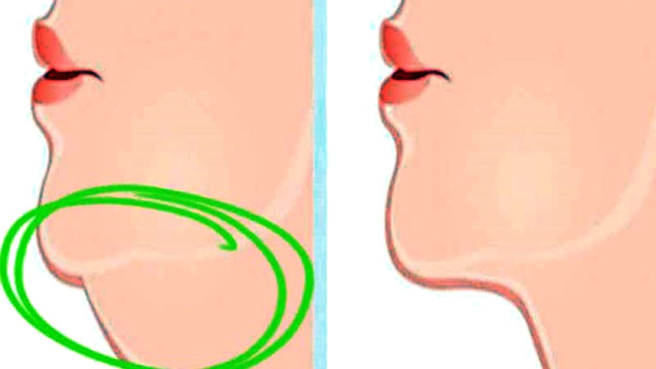 Chin clipart double chin. How to get rid