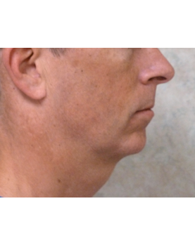 Chin drawing jawline. Julie edween d o