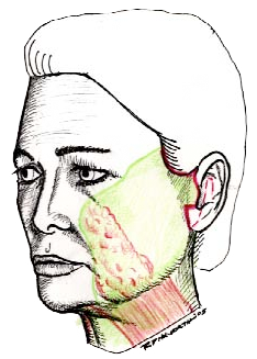 Chin drawing jawline. Classic facelift surgery in