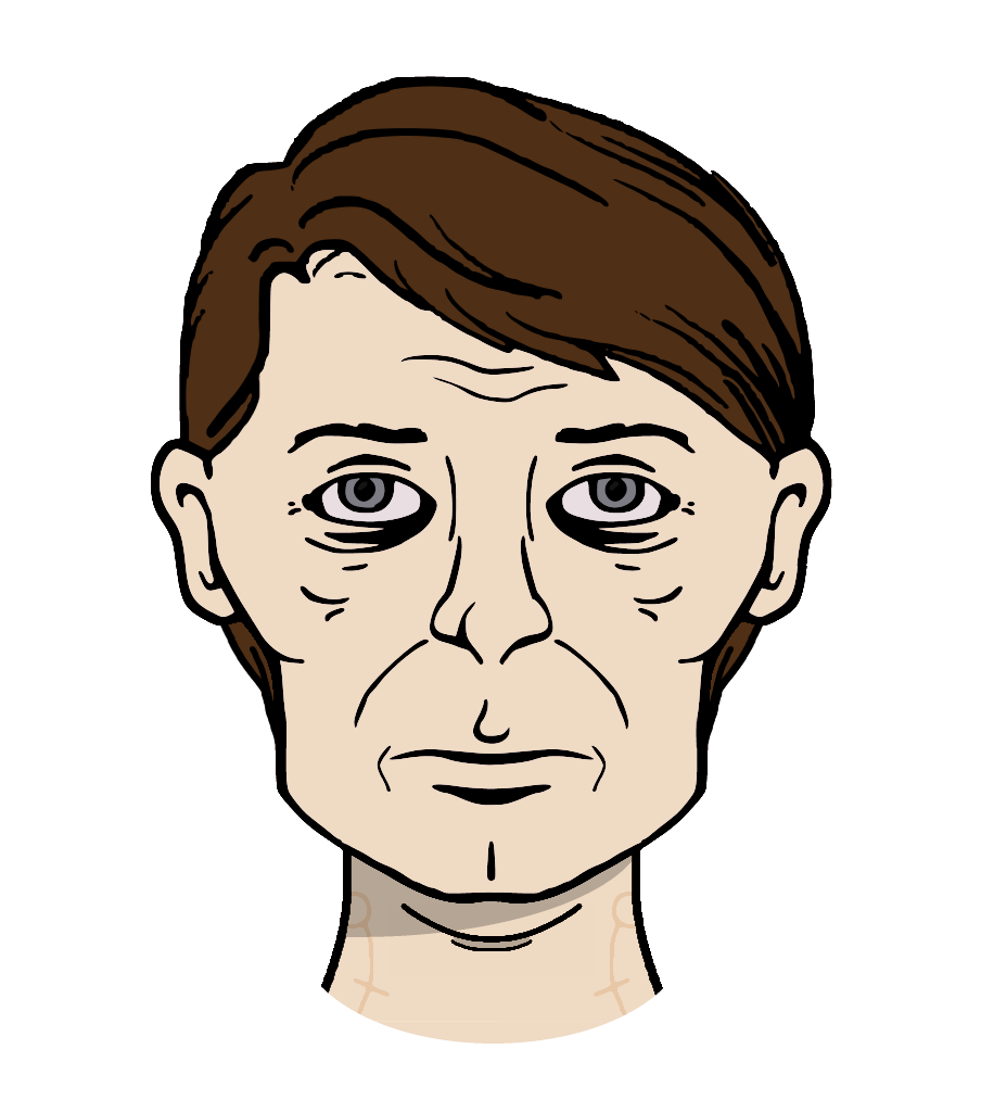 Chin drawing narrow nose. Reconstructed williams face from
