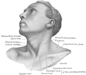 Chin drawing concave. Torticollis wikipedia graypng