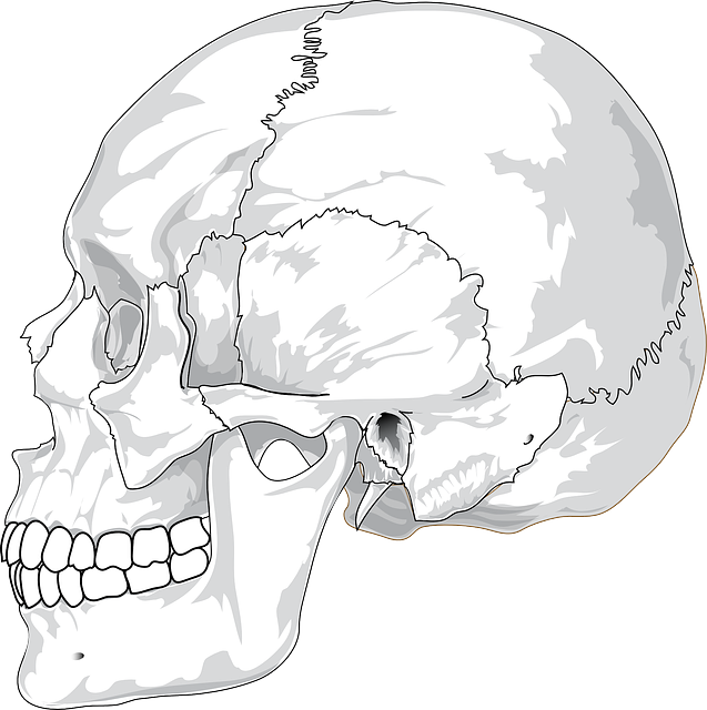 Side drawing. Cc skull cracked head