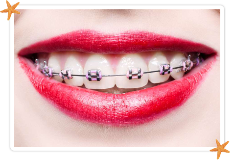 Dental clip. Type of braces greater