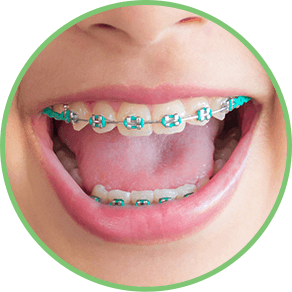 Dental clip removable. Types of braces orthodontist