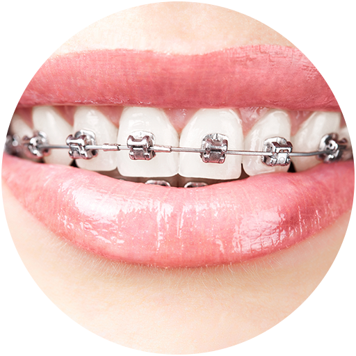 Teeth clip removable. Types of braces