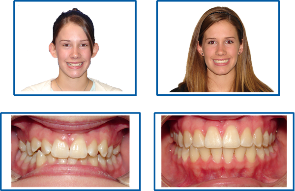 Dental clip brace. Before and after reading