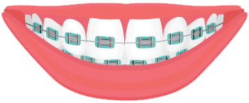 Dental clip brackets. Types of braces treatment