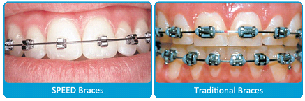 Dental clip brackets. Speed braces harmon orthodontics