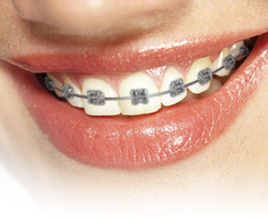 Dental clip brackets. Types of braces katz