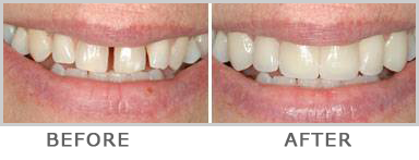 Dental clip gap tooth. Cosmetic dentistry hyderabad these