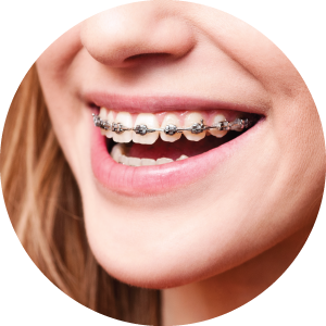 Teeth clip removable. Types braces metal clear