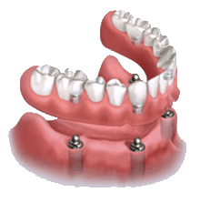 Teeth clip removable. Implant supported dentures in