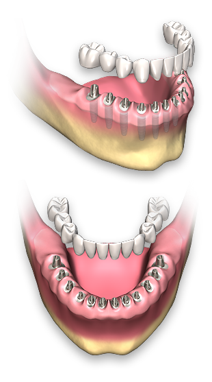 Dental clip removable. Full arch implants non