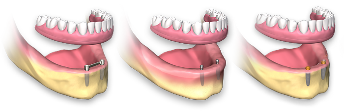 Dental clip removable. Full arch implants implant