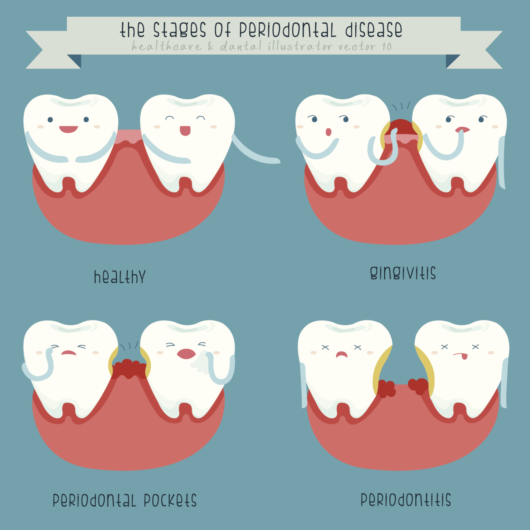 Dentist clipart dental problem. What are common periodontal