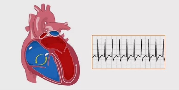 Disease clipart arrhythmia. Symptoms of what are