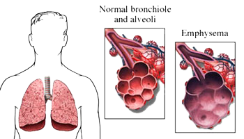 Disease drawing lung. Chronic obstructive pulmonary doctors