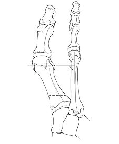 Drawing cut arm. In order to avoid