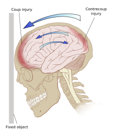Coup contrecoup injury wikipedia. Drawing bruises png transparent stock