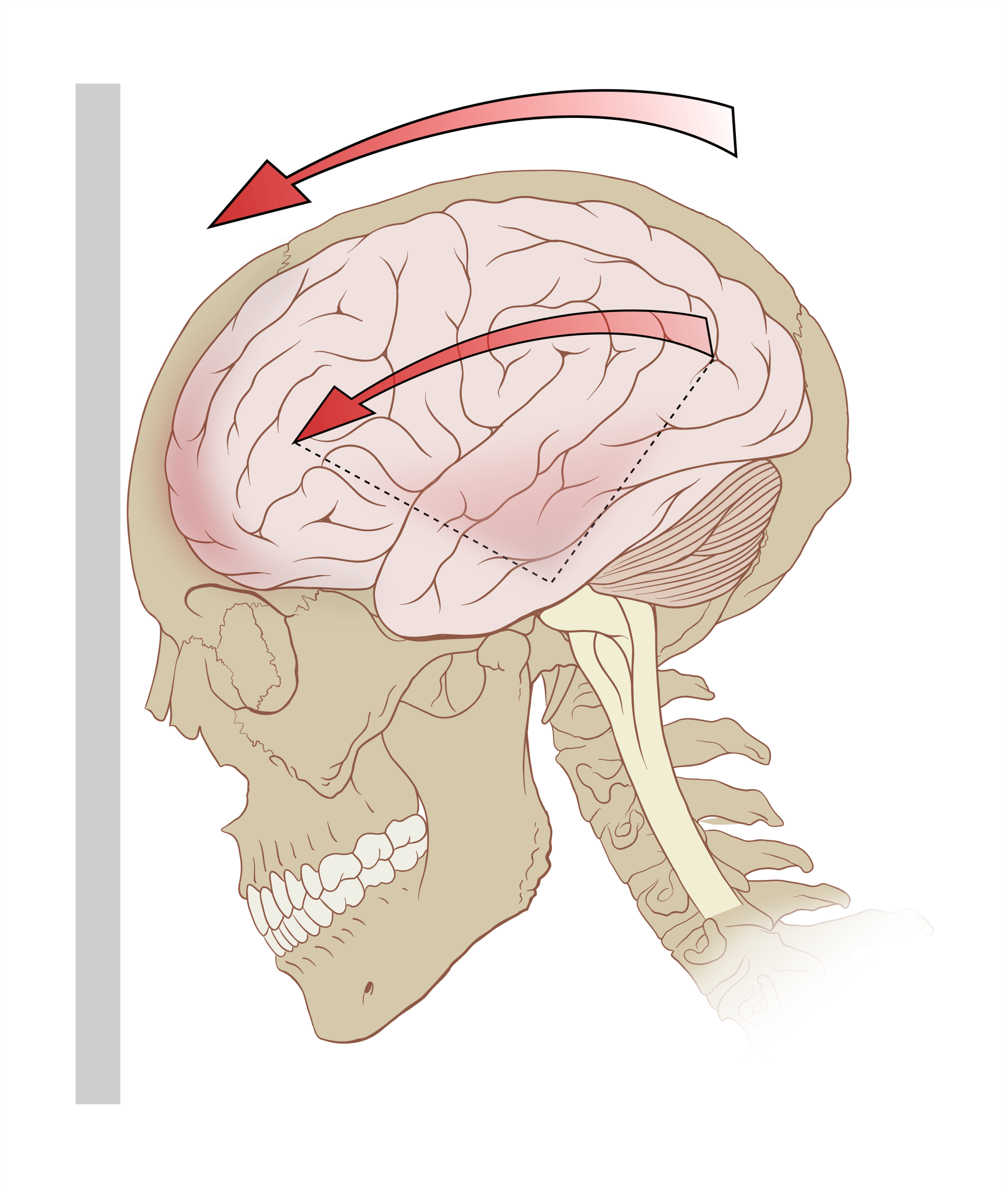 Drawing injuries traumatic brain. When it comes to