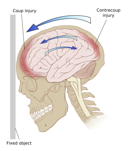 Injury www forensicmed co. Drawing injuries traumatic brain vector royalty free library