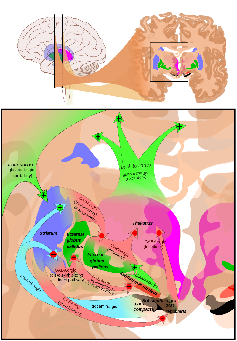 At the top a. Drawing injuries traumatic brain image transparent stock