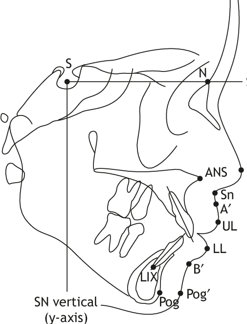 Drawing point coloring. Cephalometric landmarks used in