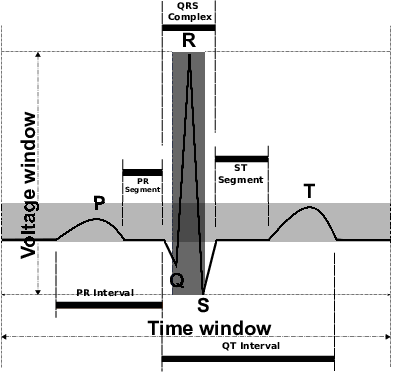 Ekg drawing cool. Typical surface ecg signal