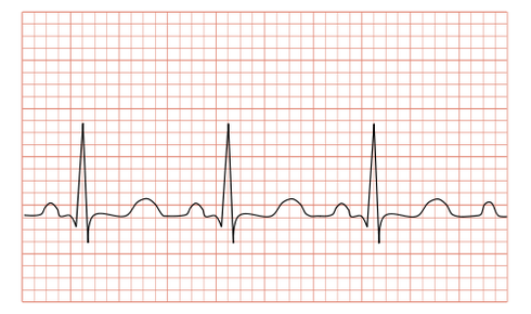 Ekg drawing unlabeled. Motivational project revitalization would